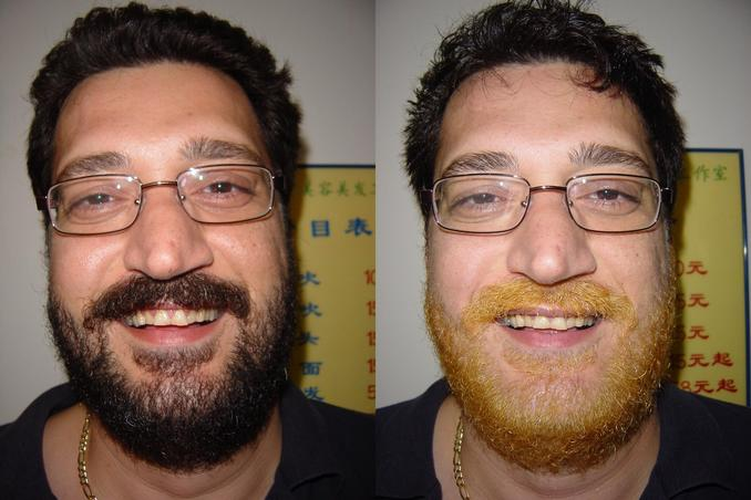 Tony's beard: before and after